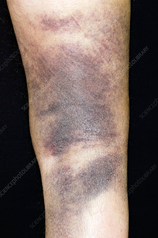 Bruising of the leg after a fall
