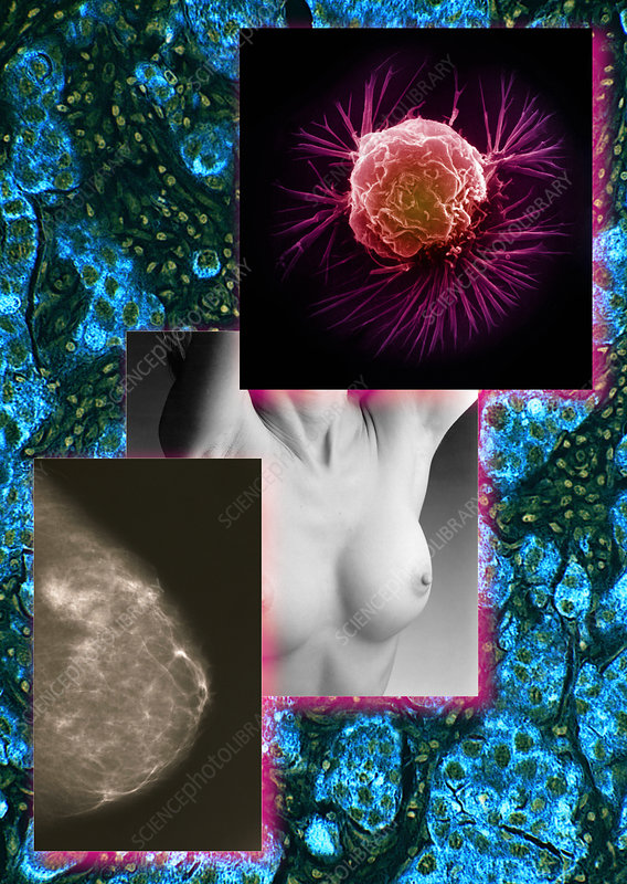 Breast Cancer Montage