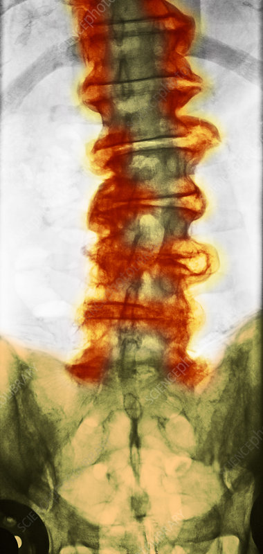 'X-ray, Spine'