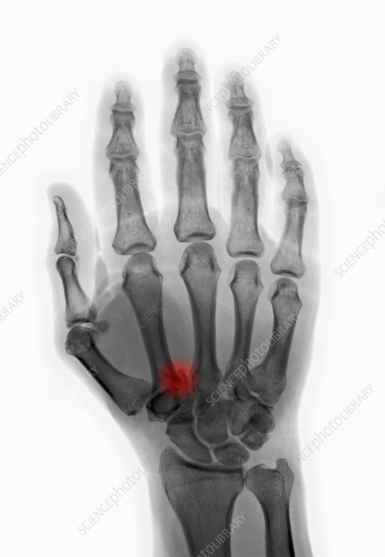 'Fractured Hand, X-Ray'