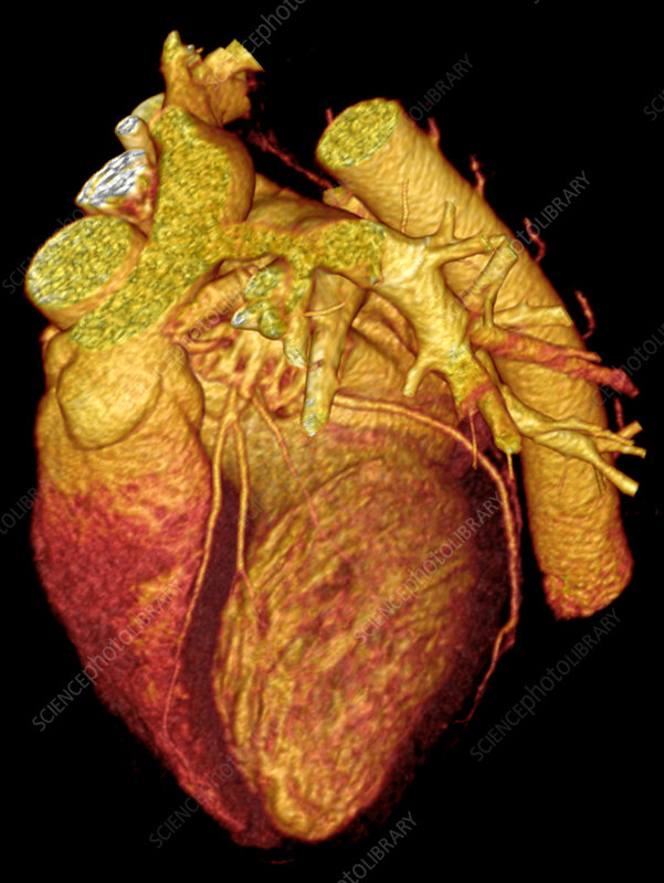 'CT Scan, Heart'