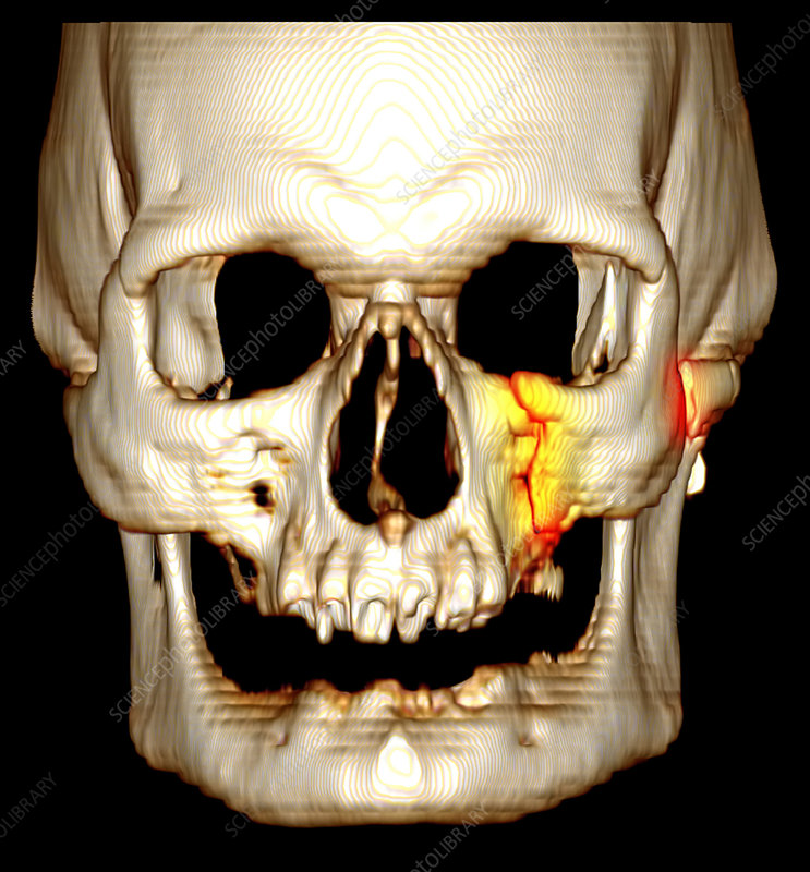 What here comminuted facial fracture right!