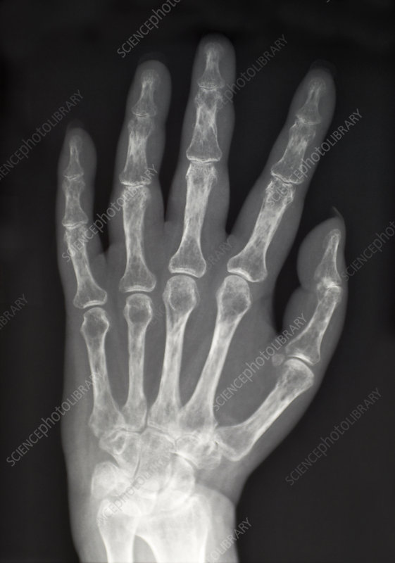 X-Ray Showing Severe Osteoporosis