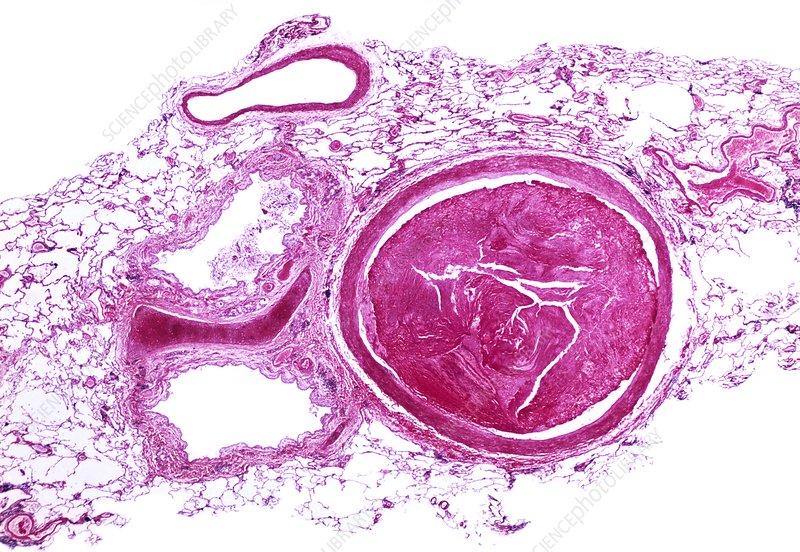 Pulmonary Embolism Light Micrograph