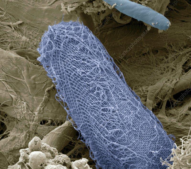 Ciliate protozoan, SEM