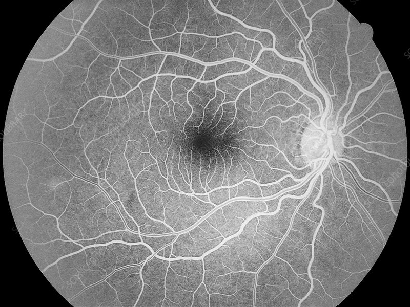 'Healthy retina (right eye), angiogram'