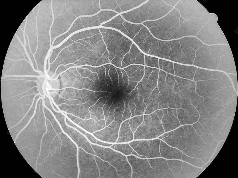 'Healthy retina (left eye), angiogram'