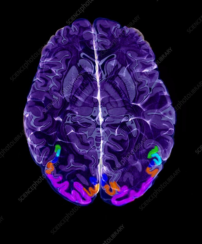 'Visual areas of the brain, MRI scan'