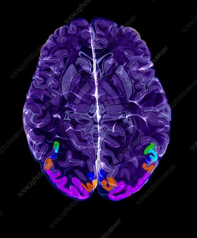 'Visual areas of the brain, MRI scan'