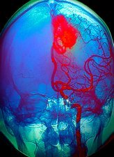 'Brain blood vessel malformation, X-ray'