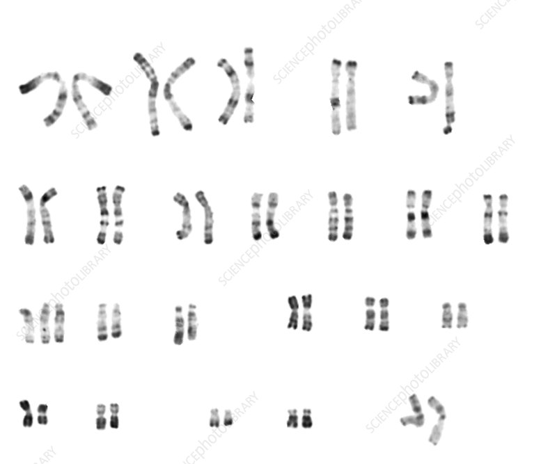 Trisomy 13 karyotype images galleries - Anomalie chromosomique fausse couche ...