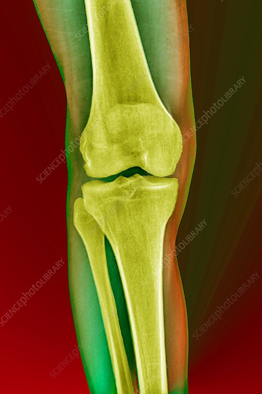 'Healthy knee joint, X-ray'