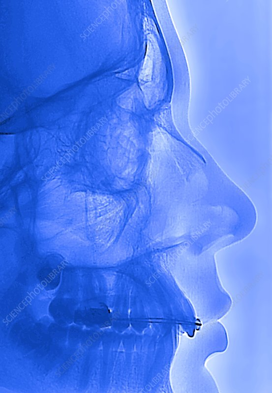 'Dental braces for supraocclusion, X-ray'