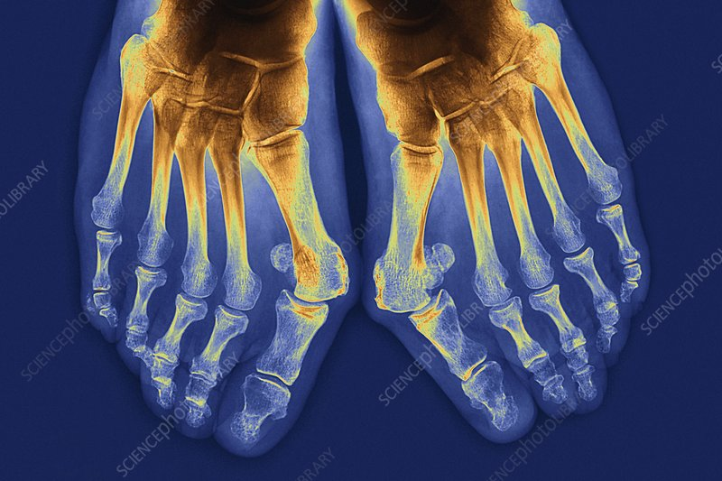 X-ray of bunions on toes (image 1 of 2)