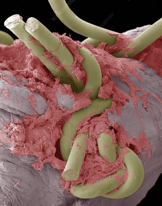 Intestinal suture repair, SEM