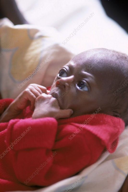 Severely malnourished baby