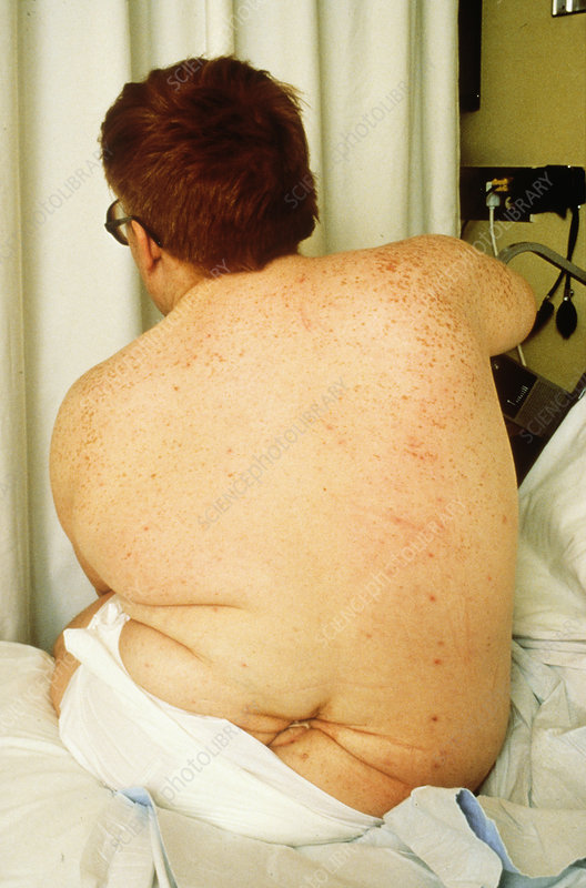 Male patient with spina bifida