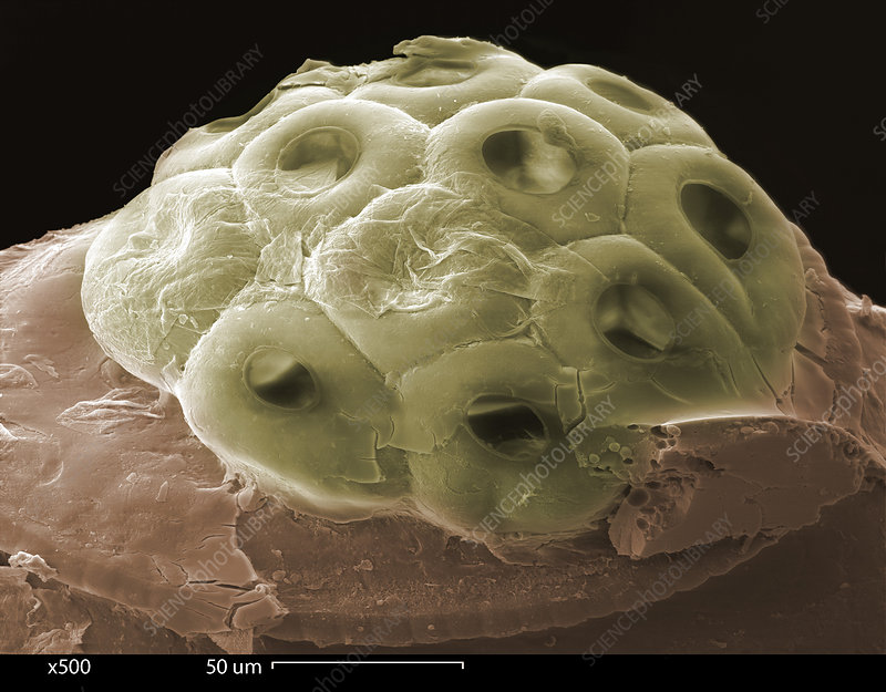 SEM of a Head Lice Eggs