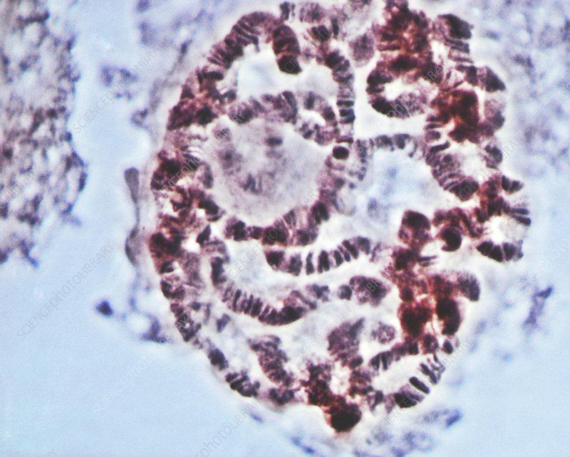 'Fruit Fly Chromosomes, SEM'