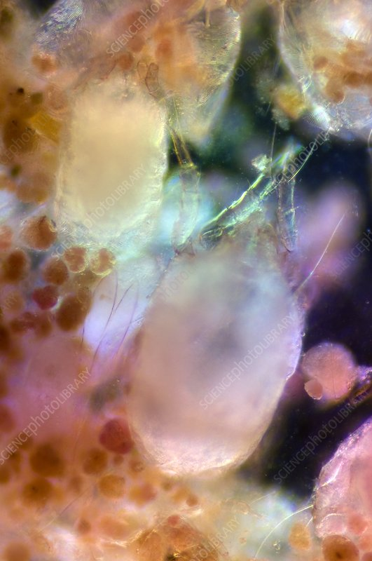 House dust mite, light micrograph