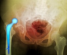 'Dislocated hip prosthesis, X-ray'