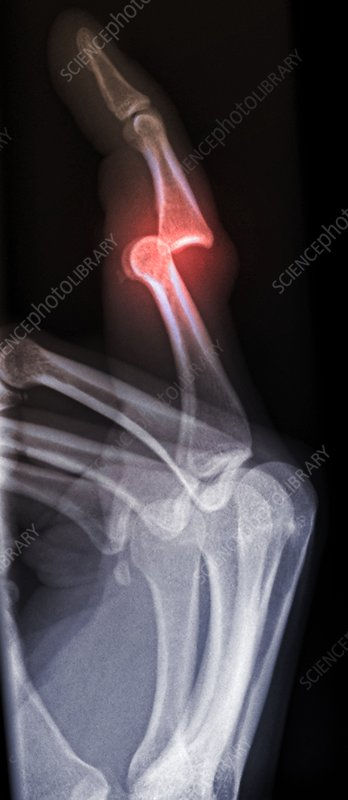 'Dislocated finger, X-ray'