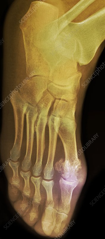 'Gouty foot, X-ray'