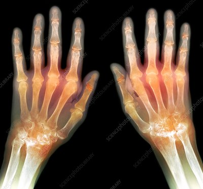 'Rheumatoid arthritis of the hands, X-ray