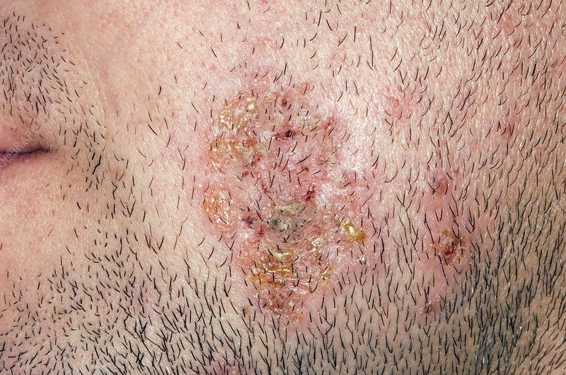 Impetigo on the cheek of a man
