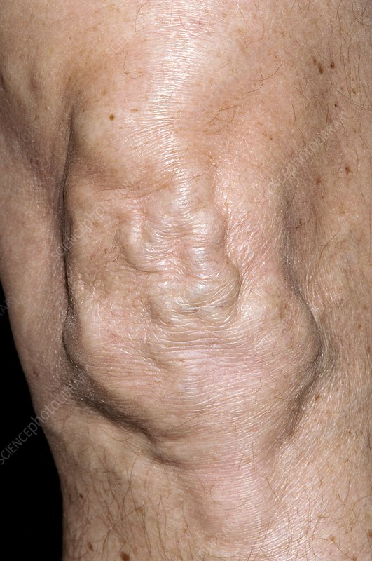 Varicose veins over the knee
