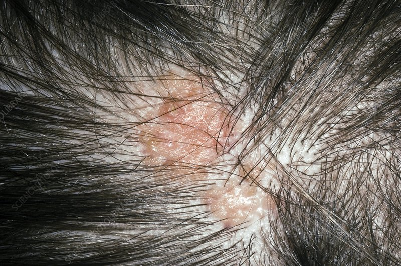 Sebaceous naevus on the scalp