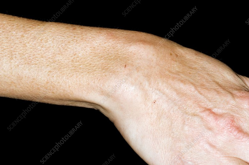 Rheumatoid arthritis of the wrist