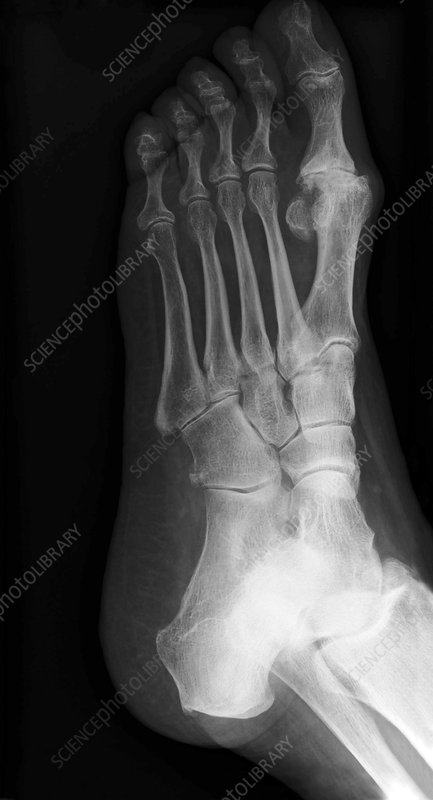 'Osteoarthritis in the big toe, X-ray'