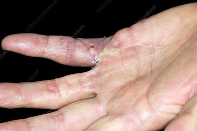 Dupuytrens contracture after surgery