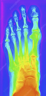 Normal left foot, X-ray