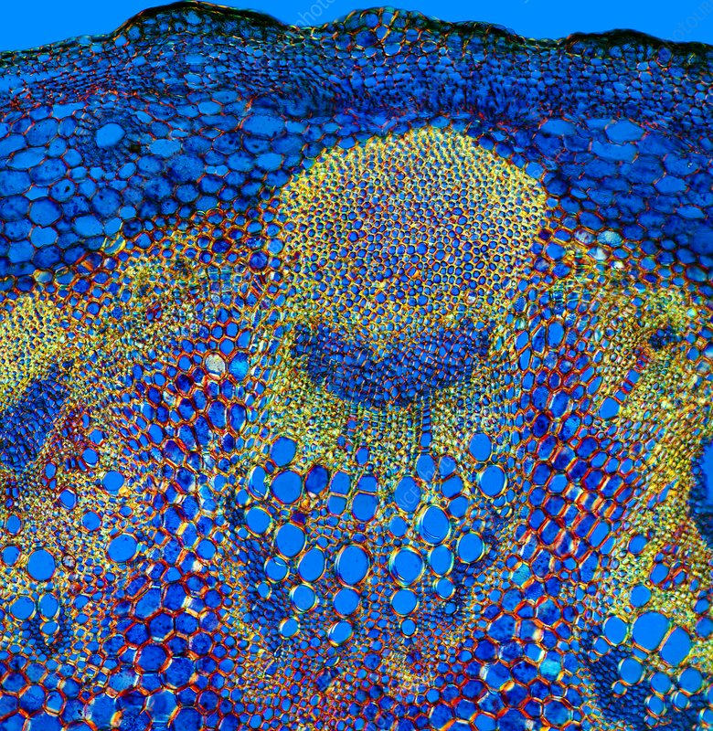Sunflower stem, light micrograph
