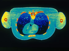 'Chest & Heart, CT Scan'