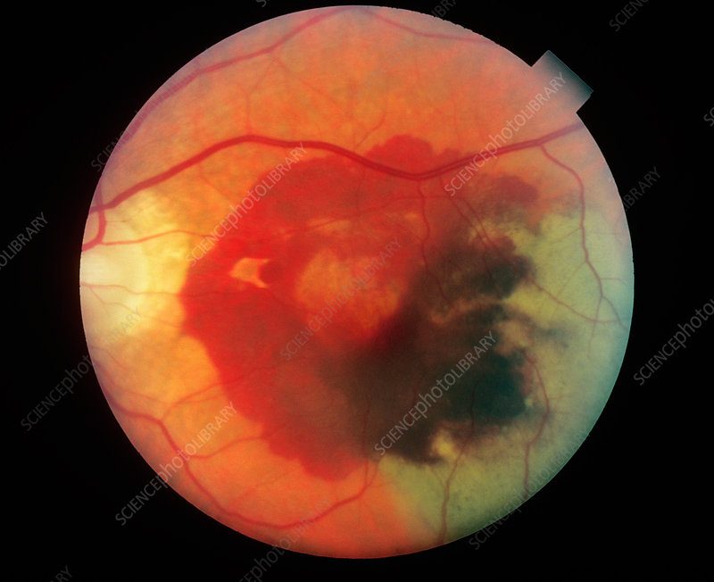 Retinal Hemorrhage (3 of 3)