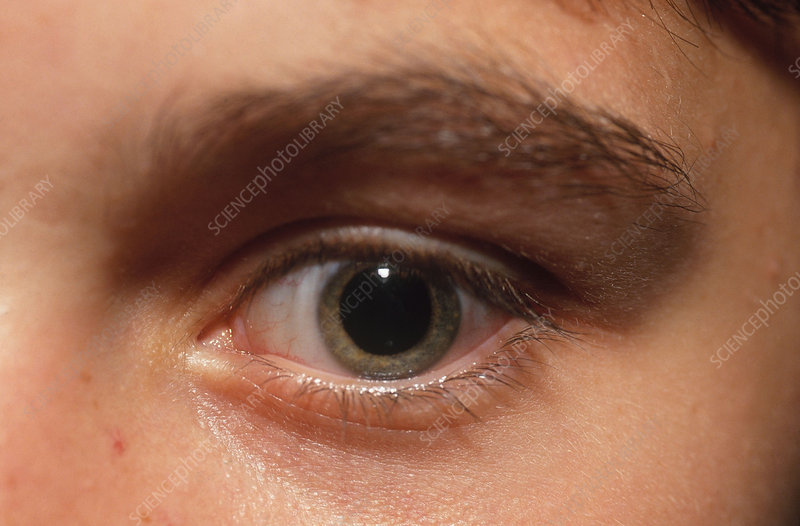 Dilated Pupil