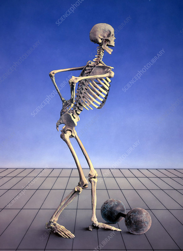 Skeleton with Back Pain