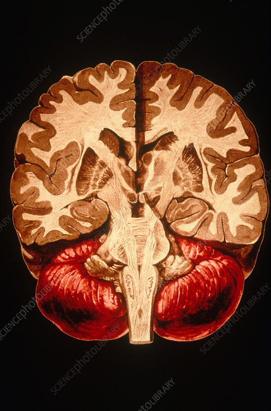 'Brain, Coronal Section'