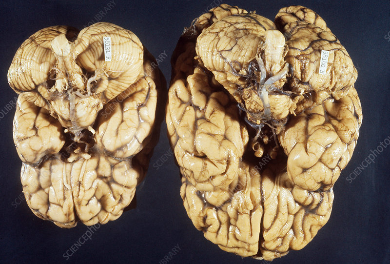 Microcephalic & Normal Brain