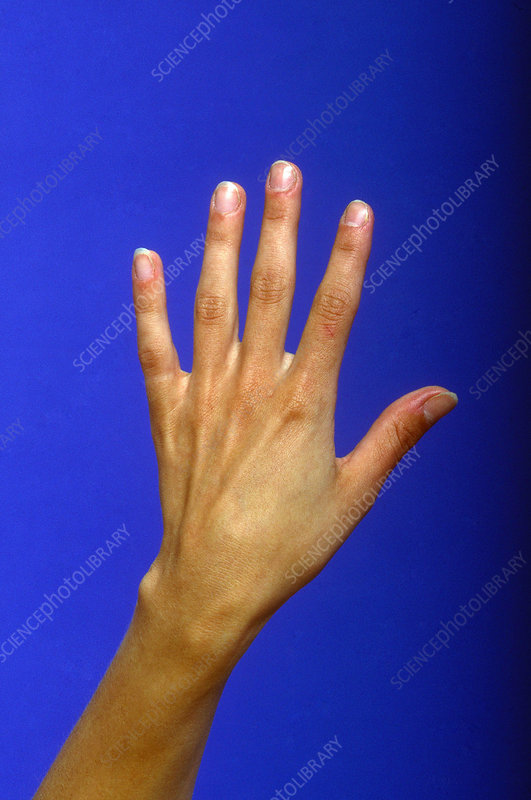 Female Hand and Wrist