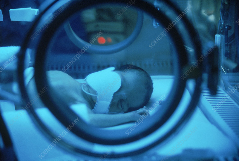 Phototherapy for Jaundice