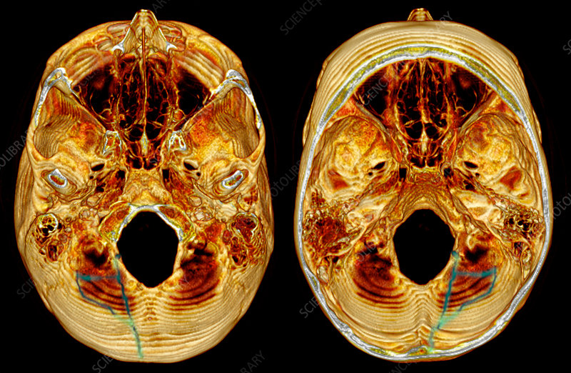 3D CT Reconstruction of Skull Fracture