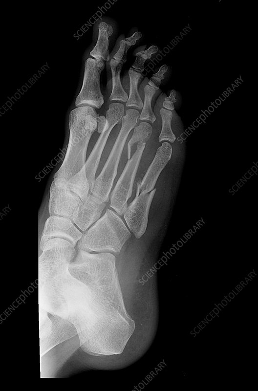 Fractures of Metatarsal Bones