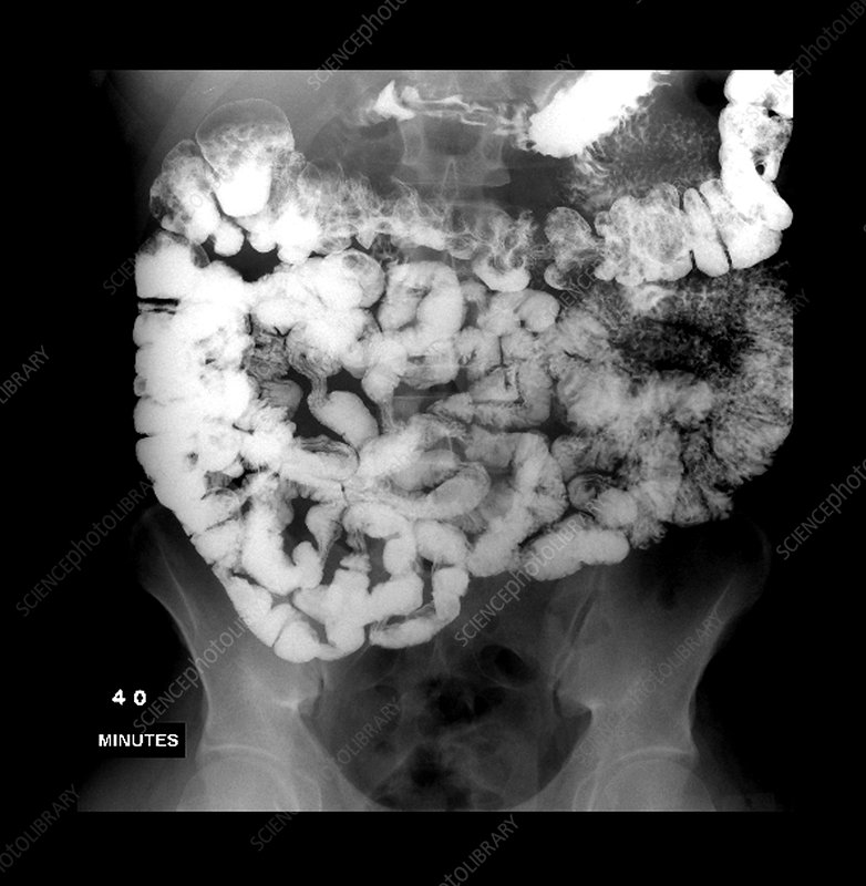 Small Intestine: Normal Small Bowel Series
