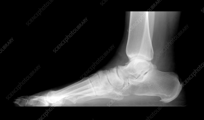 'Calcaneal Spurs, X-Ray'