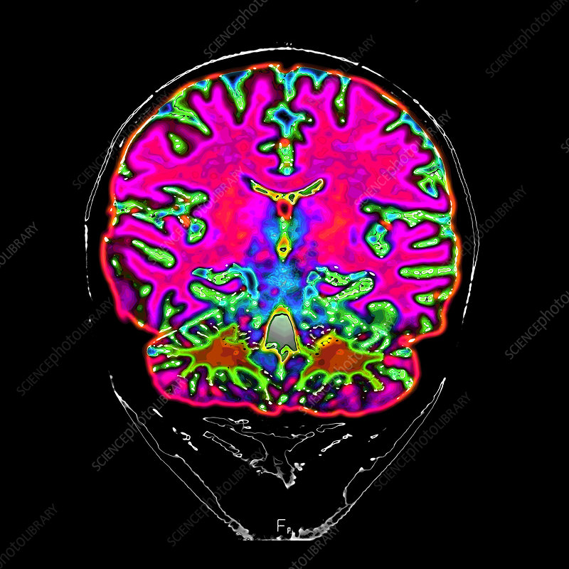 Normal MRI of Brain