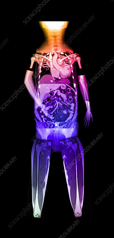 Whole Body Composite Imaging